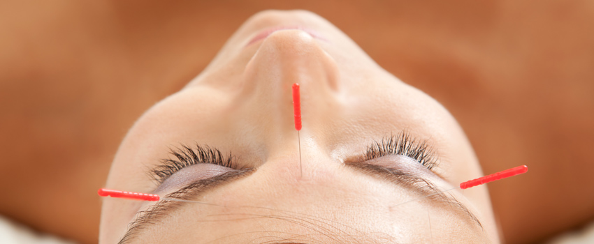 cosmetic acupuncture berkhamsted